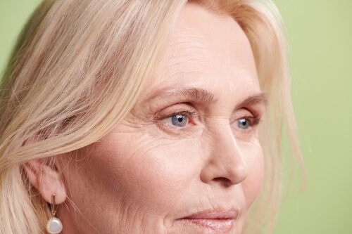 Skin Concerns - Aging Gracefully