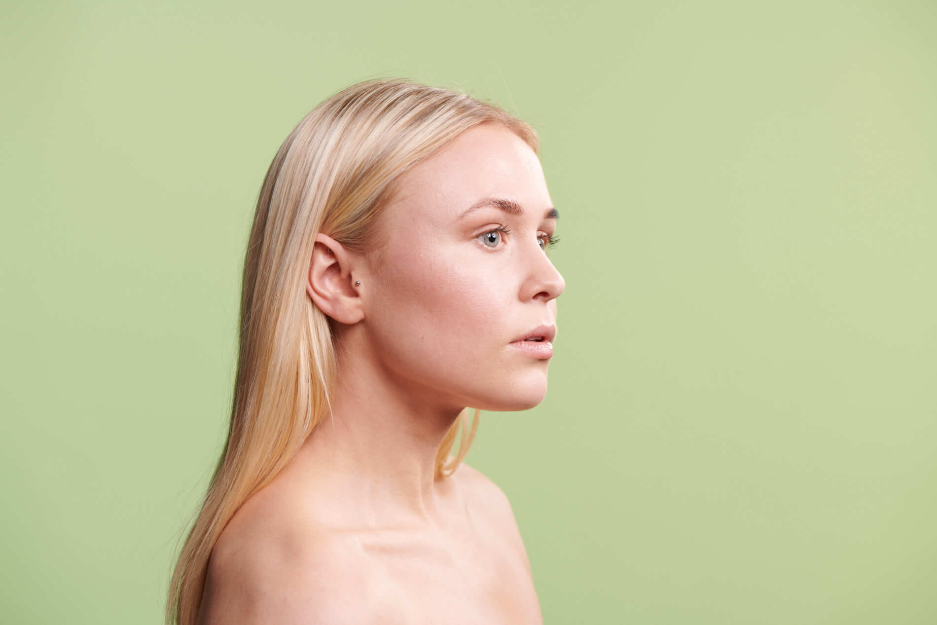 Skin Concerns - Acne Treatment